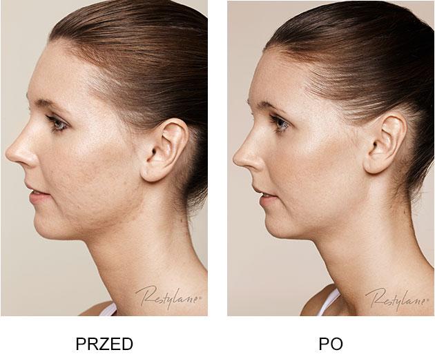 Przed iPo zabieg Restylane Skinboosters