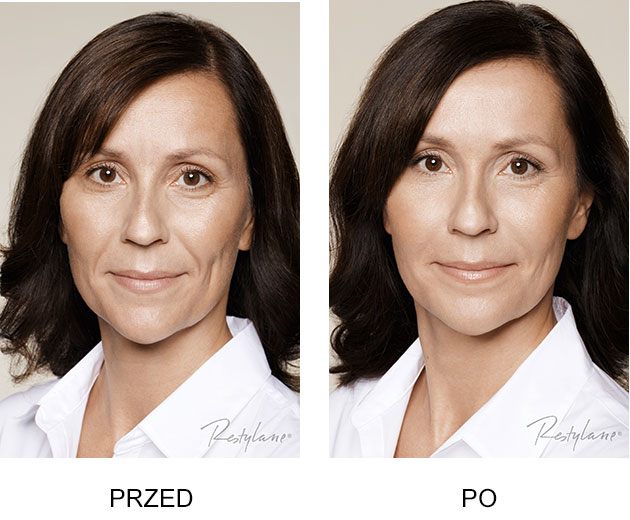 Przed iPo zabieg Restylane Skinboosters Zamrszczki mimiczne