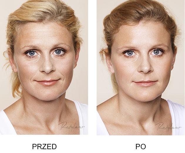 Przed iPo zabieg Restylane Skinboosters Zmarszczki kobieta