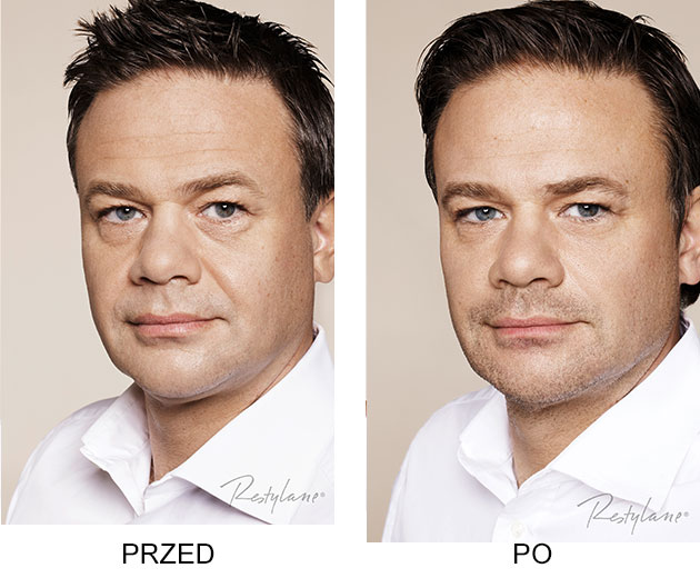Przed iPo zabieg Restylane Skinboosters Zmarszczki mężczyzna