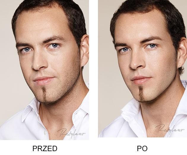 Przed iPo zabieg Restylane Skinboosters Zamrszczki czoło mężczyzna