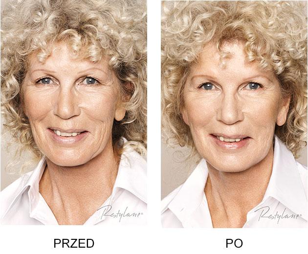 Przed iPo zabieg Restylane Skinboosters Starcze zwiotczenie skóry