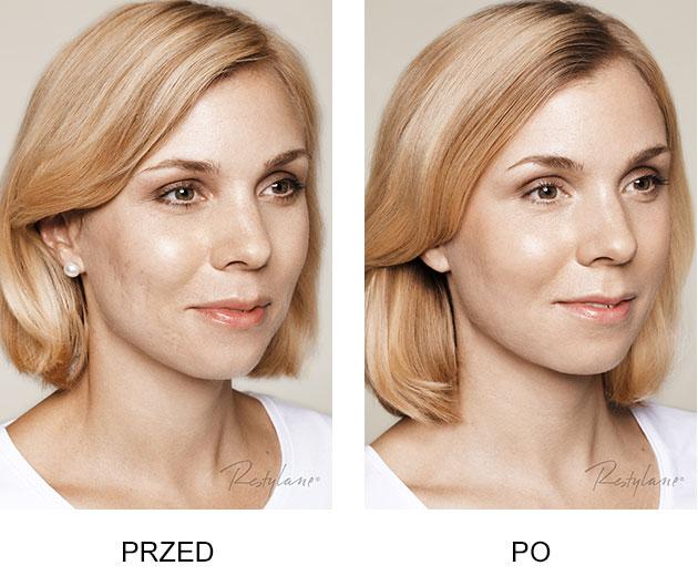 Przed iPo zabieg Restylane Skinboosters Blizny potrądziku