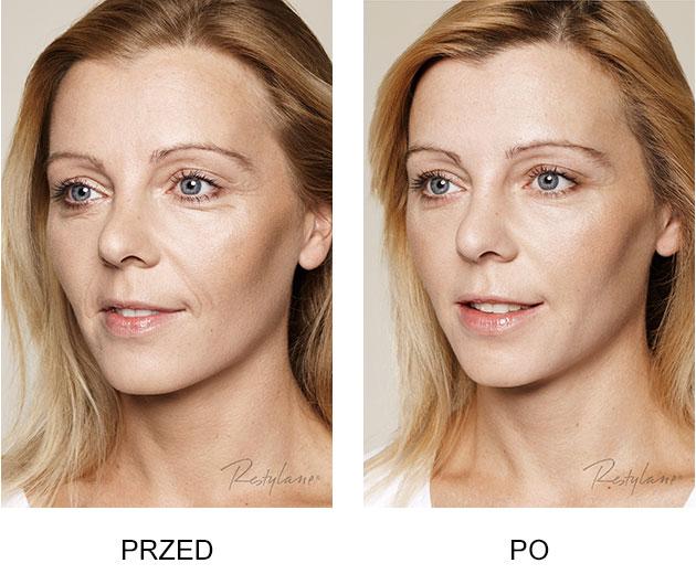 Przed iPo zabieg Restylane Skinboosters Zmarszczki