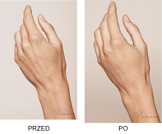Przed iPo zabieg Restylane Skinboosters dłonie