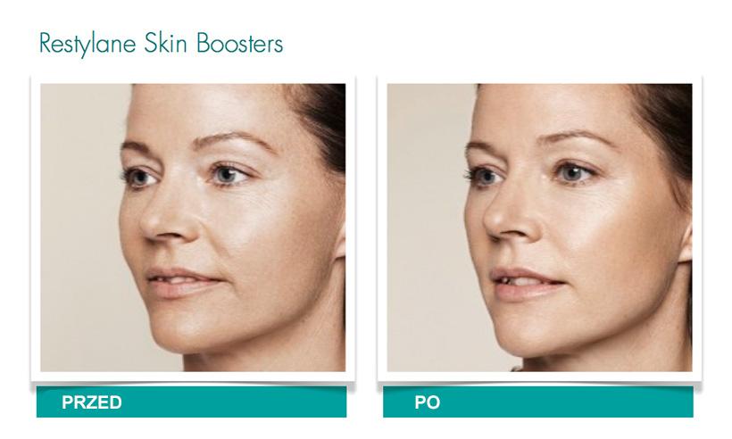Efekty zabiegów Restylane Skinboosters