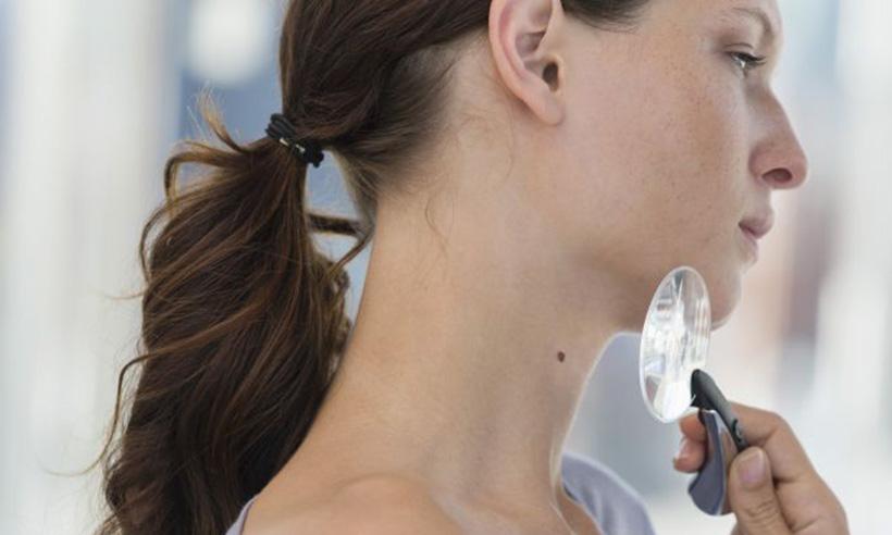 """Konsultacje dermatologiczne """"Ocena zmian skórnych iznamio..."""