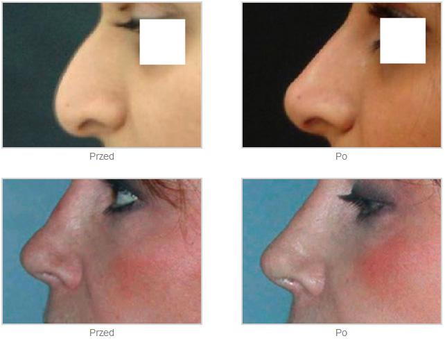 Korekta grzbietu nosa zwypełniaczem RADIESSE