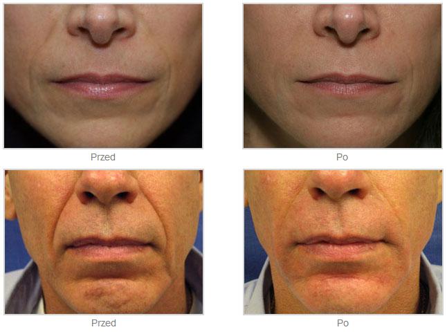 Łagodzenie, usunięcie linii mimicznych bruzd nosowo–wargowych RADIESSE