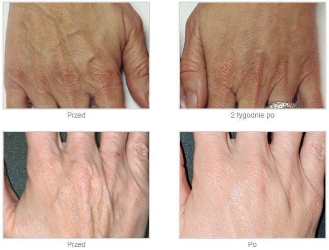 Kuracja grzbietowej powierzchni ręki zwypełniaczem RADIESSE
