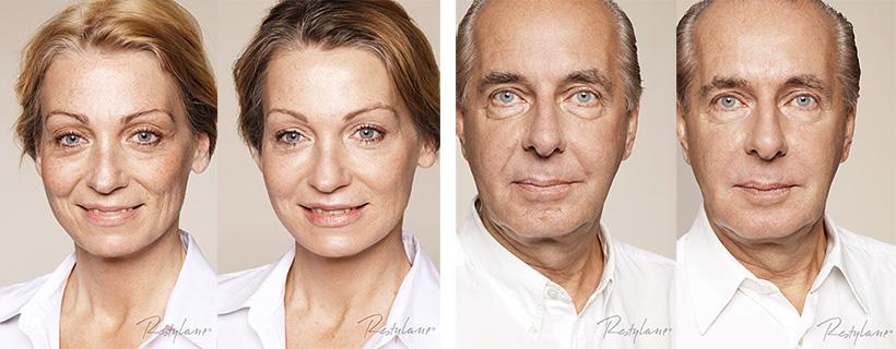 """Restylane Skinboosters efekt """"Przed iPo"""""""